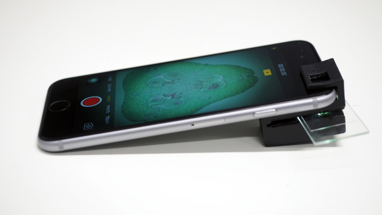 3D-printed clip-on device turns smartphone into microscope