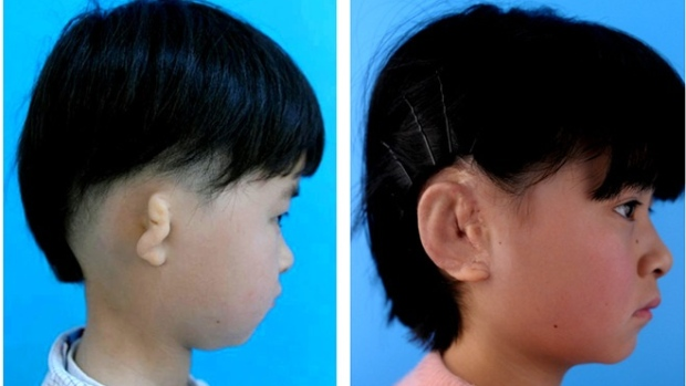 Five Chinese kids get new ears grown in lab